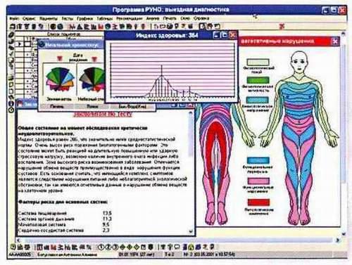Изображение на мониторе диагностического аппарата